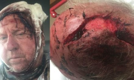 Graphic: Montana Grizzly Bear Attack Results in 90 Stitches to the Head for Elk Hunter
