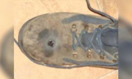 GRAPHIC: Man Thought His Steel-Toed Boots Would Stop a .45-Caliber Bullet