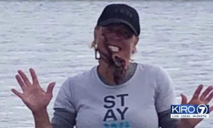 She Put an Octopus on Her Face for a Photo. It Bit Her and Sent Her to the Hospital