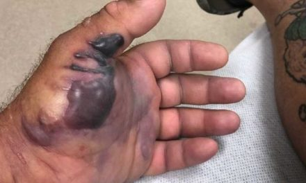 One Little Cut From a Fish Hook, and a Flesh-Eating Bacteria Almost Took This Guy's Arm